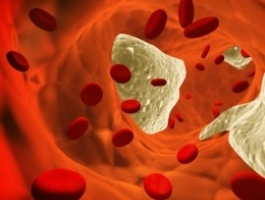 Cholesterol PLR Package