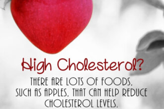 Cholesterol PLR